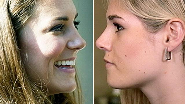 Women Seek Plastic Surgery to Get Kate Middleton's Nose