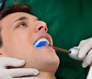 Why an Annual Dental Check-Up is Crucial