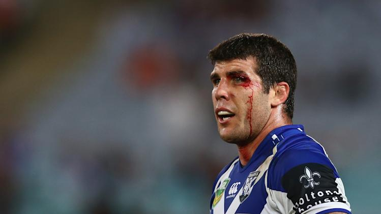 NRL Rd 5 - Bulldogs v Sea Eagles