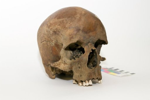 A centuries-old skull found in northern New South Wales in late 2011, in Canberra. The skull of a white man is raising questions about whether Captain James Cook really was the first European to land on the country's east coast