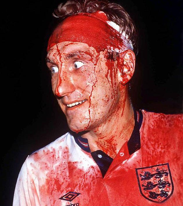 Football hard men who played on through injuries