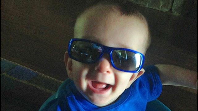 Baby's Skull Rebuilt 'Like a Jigsaw Puzzle' to Fix Fused Bones