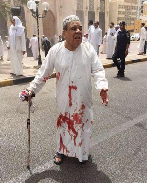 This image provided by Kuwaitna news shows a man in a blood-soaked dishdasha following of a deadly blast at a Shiite mouse in Kuwait City, Friday, June 26, 2015. A posting on a Twitter account known to belong to the Islamic State group claimed that the explosion was work of a suicide bomber wearing an explosive belt. (Kuwaitna News via AP)