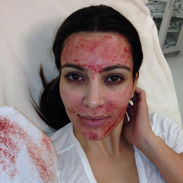 Celebrity Twitpics: Kim Kardashian underwent a 'vampire facial' for her TV show this week. The gruesome procedure involves drawing blood from the arm, spinning it in centrifuge to separate the blood a
