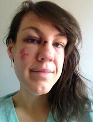 No Make-Up Selfie: Oxford University Student Raises £12,000 for Rape Victims after Nightclub Assault