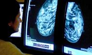 Blocking Breast Cancer Drug A 'Major Blow'