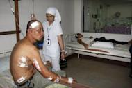 Two private security guards (L and R), victims of a bomb explosion near a drug store, are treated at a hospital in Cotabato City, in southern island of Mindanao. A suspected motorcycle bomb killed one person and wounded six others in a huge blast at a drugstore in the southern Philippines on Tuesday, police said