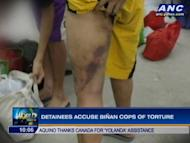 The Commission on Human Rights is investigating allegations of torture against policemen from Binan, Laguna. They supposedly tortured detainees for information, for money, and for fun. Here's the full story. For more news, click here.