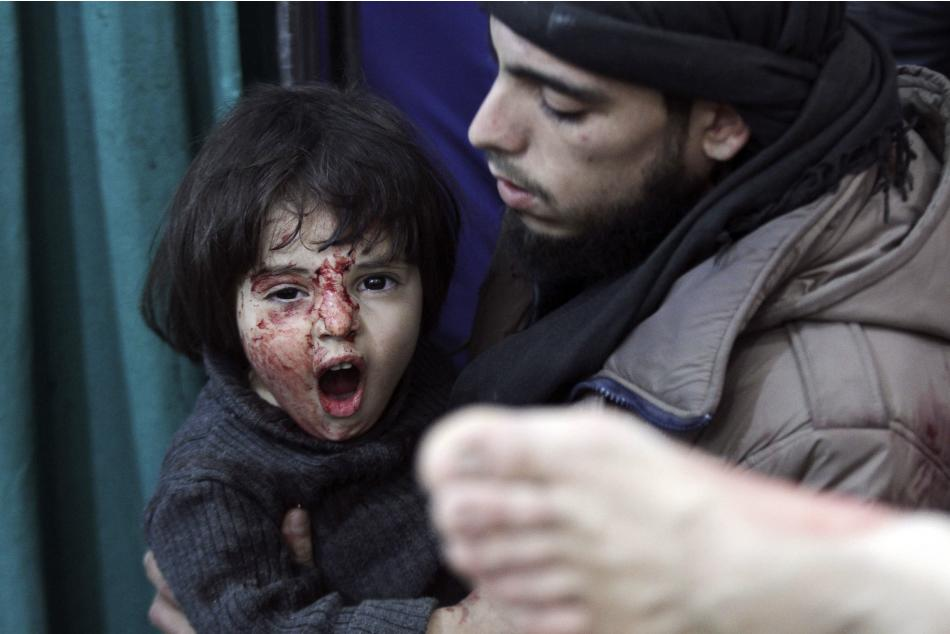 An injured child reacts in a field hospital after what activists said were air strikes by forces loyal to Syria's President Bashar al-Assad in Douma Eastern Al-Ghouta, near Damascus