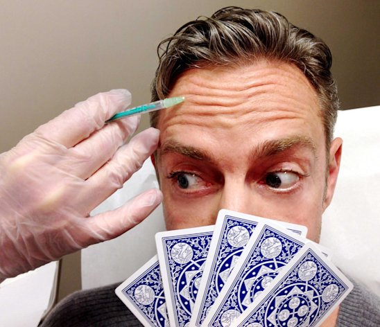 The American doctor insists that Botox will help with a poker face (Caters)