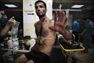 A Syrian rebel gestures as he waits to be treated for his wounds at a hospital in the Sheikh Fares district of the northern city of Aleppo. Syrian troops shelled several districts in Aleppo and clashed with rebels on Tuesday, as Damascus ally Iran proposed a simultaneous halt to the violence and a peaceful solution to the conflict