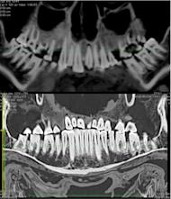 The development of high-resolution CT scanning technology over the past 20 years meant researchers could examine the male mummy's ancient dental problems and treatment in great detail.