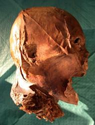 French King Henry IV's embalmed head