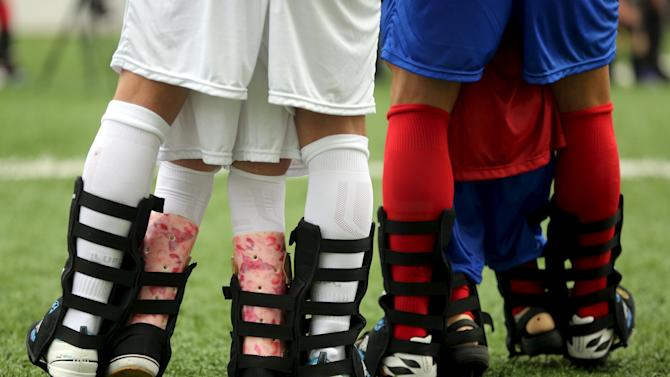 """Disabled children and Brazilian soccer players attend a """"World Boots"""" event for children with disabilities, at the Neymar Institute in Praia Grande"""