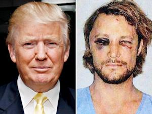"Donald Trump: Gabriel Aubry ""Became a Punching Bag,"" Halle Berry Is ""Always Drama"""