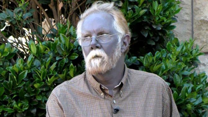 Internet Sensation 'Papa Smurf' Dies; Other Blue People ...