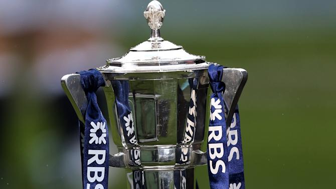 A general view of the Six Nations trophy, ahead of the Six Nations rugby union international match between Scotland and England at Murrayfield, Edinburgh, Scotland, Saturday Feb. 8, 2014. (AP Photo/Scott Heppell)