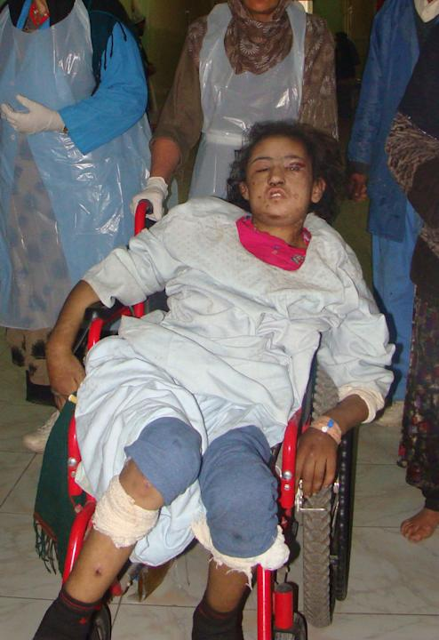 In this Wednesday, Dec. 28, 2011 file photo, 15-year-old Sahar Gul, is wheeled into a hospital in Baghlan north of Kabul, Afghanistan. According to officials in northeastern Baghlan province, Gul's in