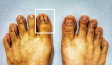 指甲長黑線 小心可能是皮膚癌