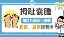 拇趾囊腫:拇指外翻惡化腫脹,膝蓋、肩膀跟著痛