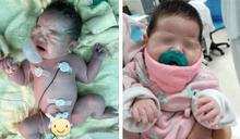 「手握氧氣罩」心臟病小女嬰撐過來了