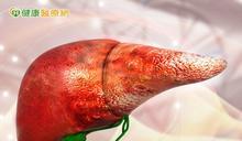 每年一萬三千人死於肝病 B、C型肝炎帶原者要小心