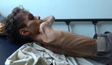 餓到沒力氣哭 葉門8萬5000童餓死