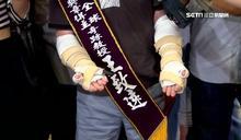 台雙臂移植首例!王致遠獲頒生命鬥士