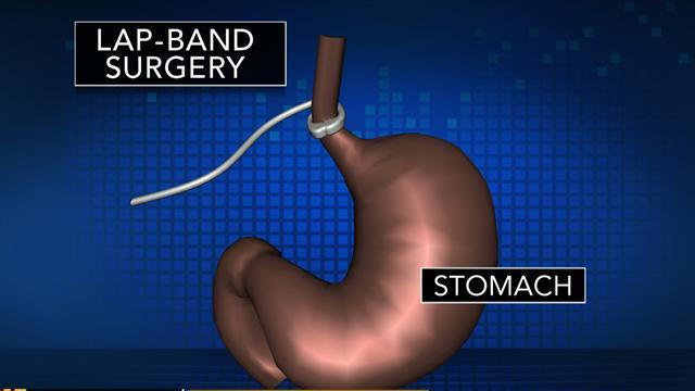 Could Christie's lap band surgery work for you?