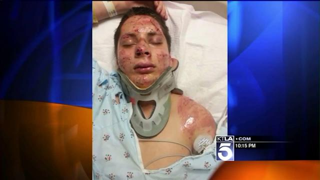 Local Teen Able to Walk Again After Being Left for Dead by Hit-and-Run Driver