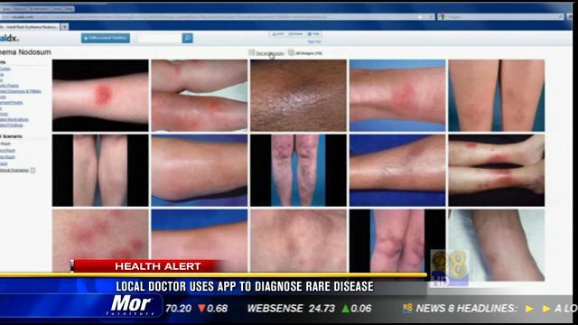 San Diego doctor uses app to diagnose rare disease