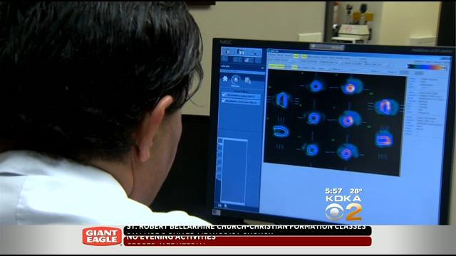 Study Looks At Borderline High Blood Pressure And Stroke Risk