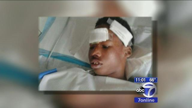 NYPD investigates how teen went through window after arrest