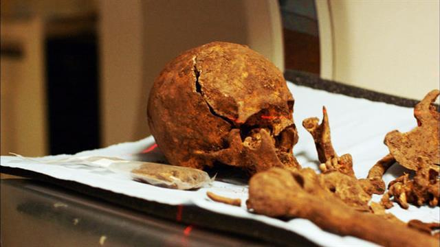 Are These the Missing Bones of Richard III?