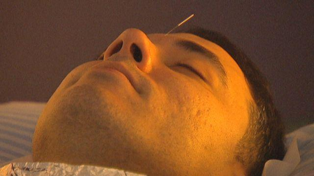 Helping to make acupuncture more affordable