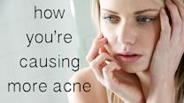 How to Beat the Bad Habit That's Causing Acne