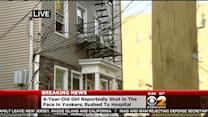4-Year-Old Girl Reportedly Shot In The Face In Yonkers