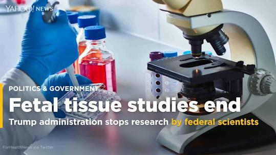 Image result for fetal tissue research