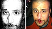 New evidence may support Zimmerman's claims