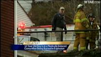 Boy in medically induced coma after Coraopolis blast