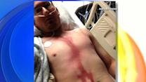 Idaho Man Survives Lightning Strike to the Head