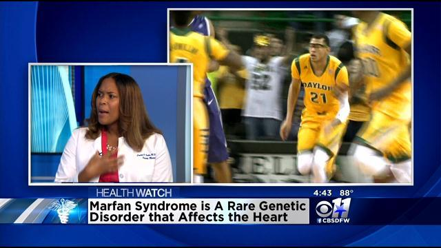 Health Watch: Dr. Crystal Foster Discusses Marfan Syndrome