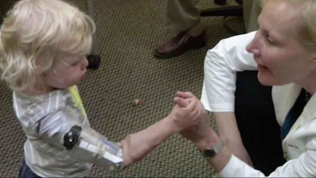 Toddler on his way to riding a tricycle with prosthetic arms