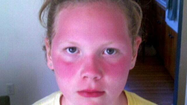 Sunscreen Ban in Schools Angers Parents