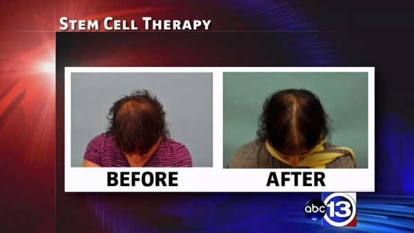 Doctor has high hopes for new hair-loss treatment