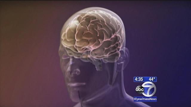 Women more likely than men to get Alzheimer's, study says
