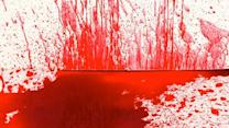 10 Disgusting Facts About Blood