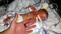 Six-day old newborn survives rare heart surgery