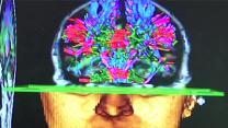 'Landmark Study' Focuses on NFL Players Brains