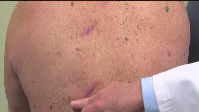 May is skin cancer awareness month, protect yourself from dangerous disease
